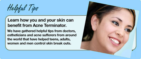 Helpful Tips to fight acne